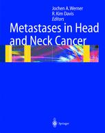 Metastases in Head and Neck Cancer