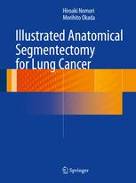 Illustrated Anatomical Segmentectomy for Lung Cancer