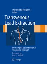 Transvenous Lead Extraction