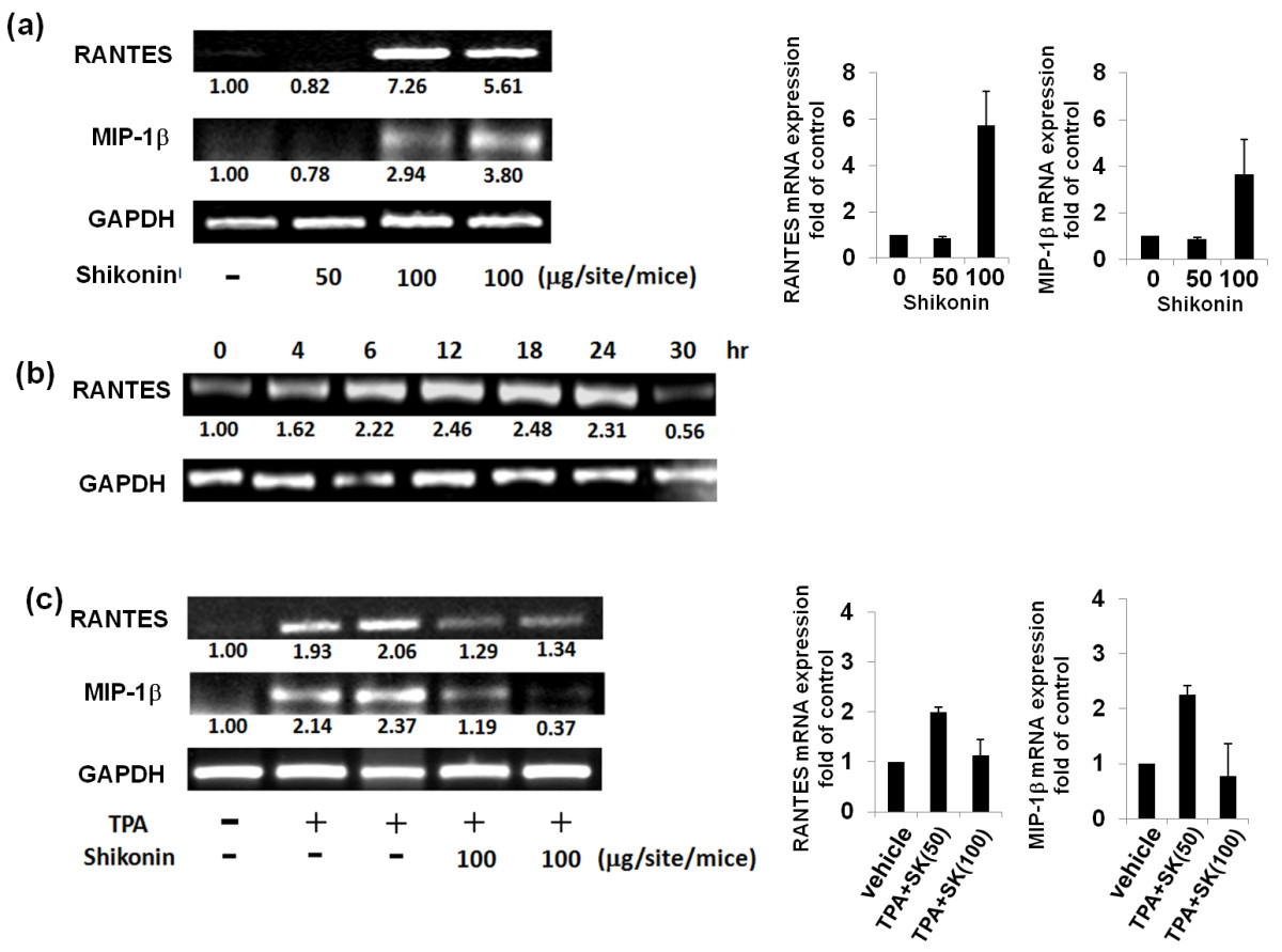 http://static-content.springer.com/image/art%3A10.1186%2F1423-0127-19-42/MediaObjects/12929_2012_Article_384_Fig2_HTML.jpg
