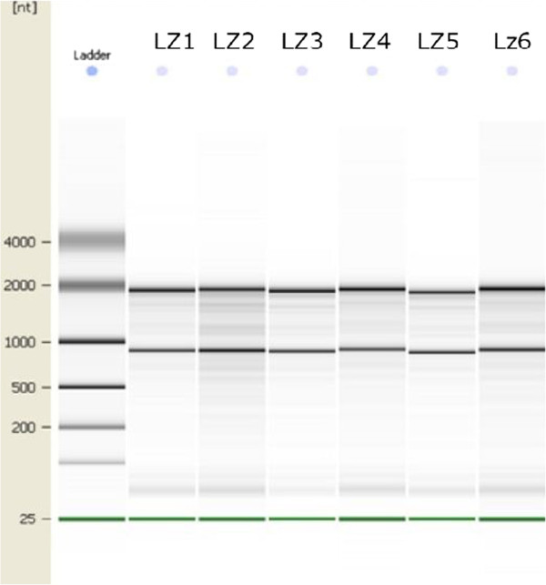 http://static-content.springer.com/image/art%3A10.1186%2F1423-0127-20-9/MediaObjects/12929_2012_Article_469_Fig1_HTML.jpg