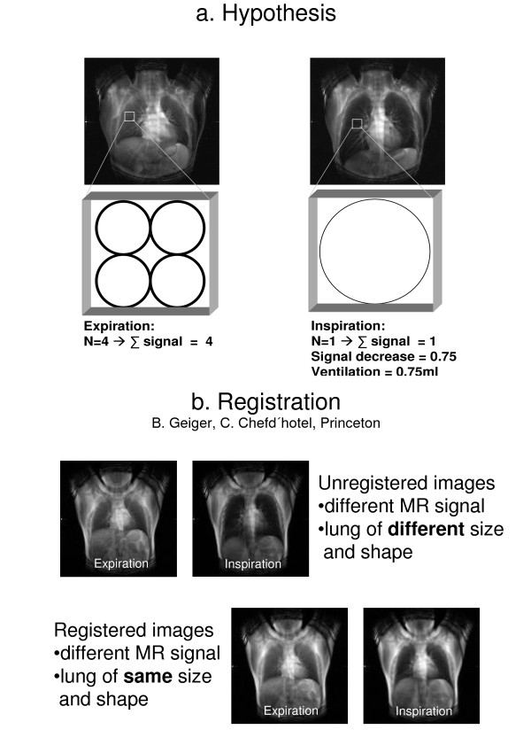 http://static-content.springer.com/image/art%3A10.1186%2F1465-9921-7-106/MediaObjects/12931_2006_497_Fig1_HTML.jpg