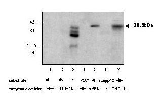 http://static-content.springer.com/image/art%3A10.1186%2F1471-2180-3-7/MediaObjects/12866_2003_Article_80_Fig9_HTML.jpg
