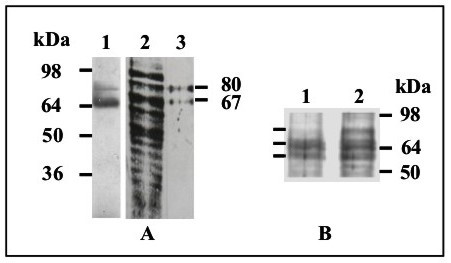 http://static-content.springer.com/image/art%3A10.1186%2F1471-2180-6-85/MediaObjects/12866_2006_Article_298_Fig1_HTML.jpg
