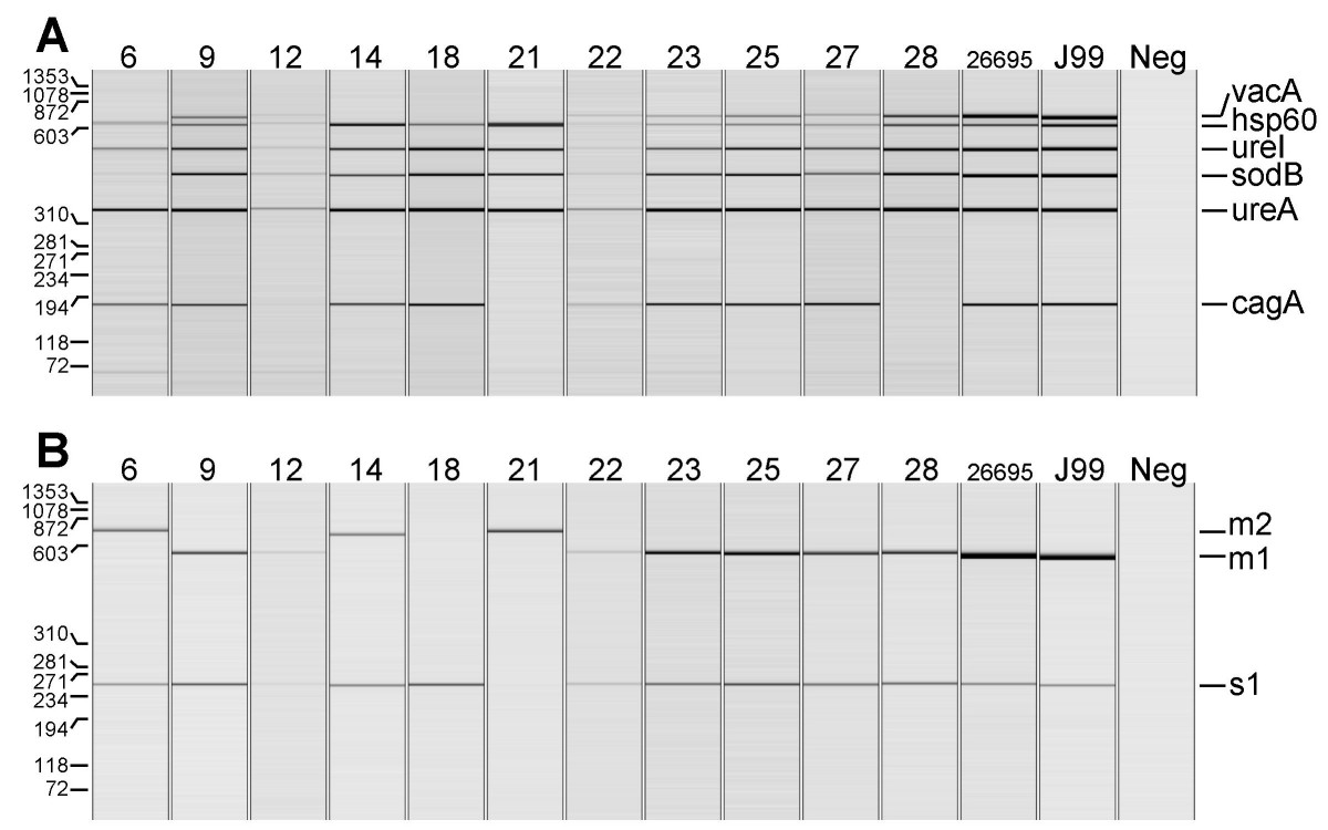 http://static-content.springer.com/image/art%3A10.1186%2F1471-2180-8-175/MediaObjects/12866_2008_Article_608_Fig3_HTML.jpg