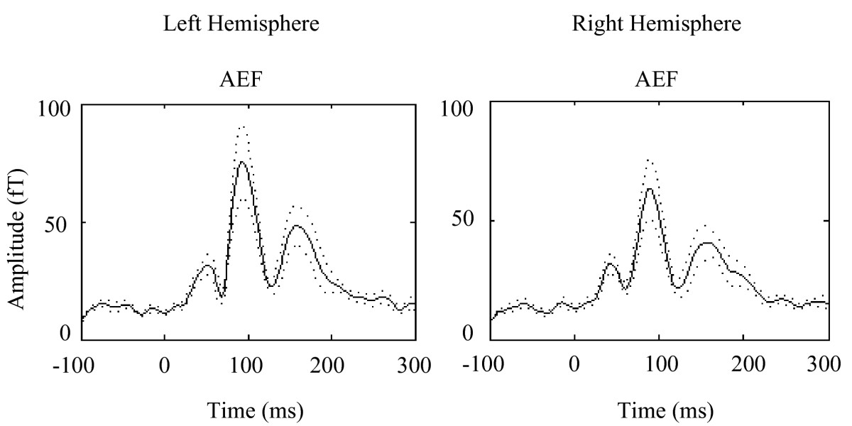 http://static-content.springer.com/image/art%3A10.1186%2F1471-2202-10-58/MediaObjects/12868_2009_Article_1062_Fig2_HTML.jpg