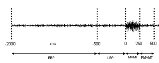 http://static-content.springer.com/image/art%3A10.1186%2F1471-2202-11-112/MediaObjects/12868_2010_Article_1671_Fig1_HTML.jpg
