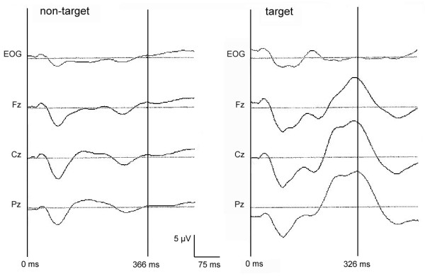 http://static-content.springer.com/image/art%3A10.1186%2F1471-2202-12-121/MediaObjects/12868_2011_2467_Fig1_HTML.jpg