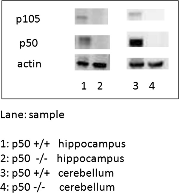 http://static-content.springer.com/image/art%3A10.1186%2F1471-2202-13-45/MediaObjects/12868_2012_2514_Fig10_HTML.jpg