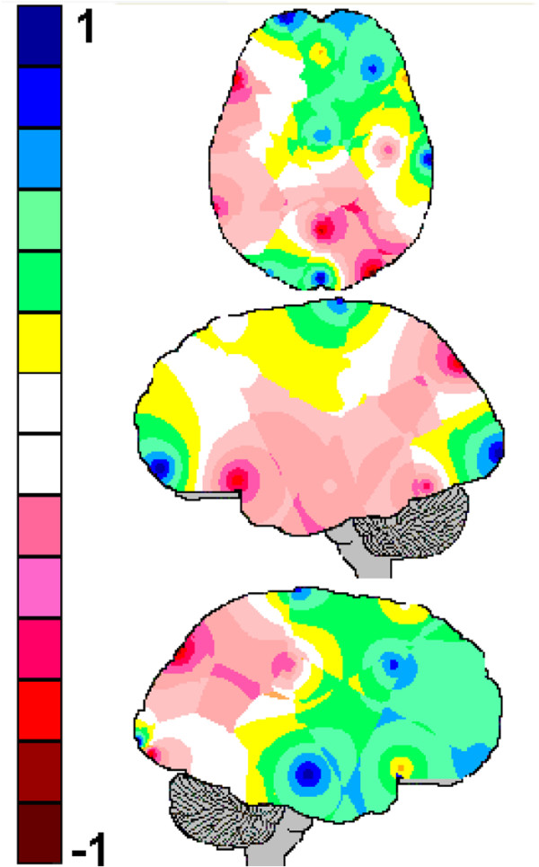 http://static-content.springer.com/image/art%3A10.1186%2F1471-2202-14-109/MediaObjects/12868_2012_3417_Fig7_HTML.jpg