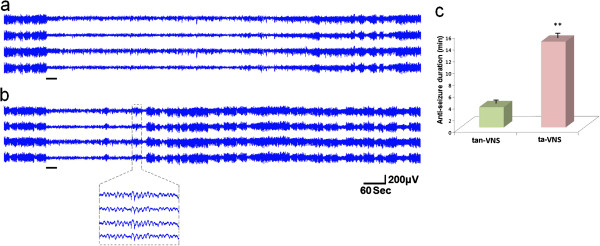 http://static-content.springer.com/image/art%3A10.1186%2F1471-2202-14-85/MediaObjects/12868_2012_3426_Fig7_HTML.jpg