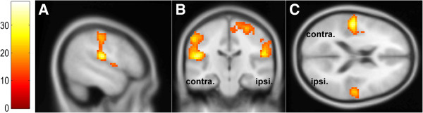 http://static-content.springer.com/image/art%3A10.1186%2F1471-2202-15-43/MediaObjects/12868_2013_3492_Fig3_HTML.jpg