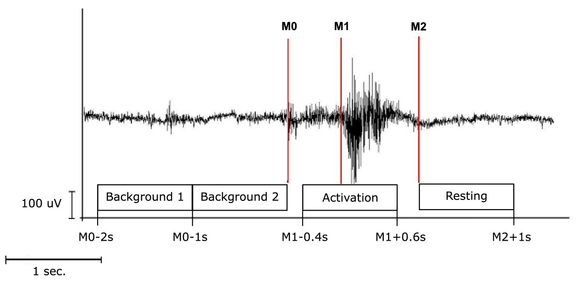 http://static-content.springer.com/image/art%3A10.1186%2F1471-2202-8-62/MediaObjects/12868_2007_Article_360_Fig3_HTML.jpg