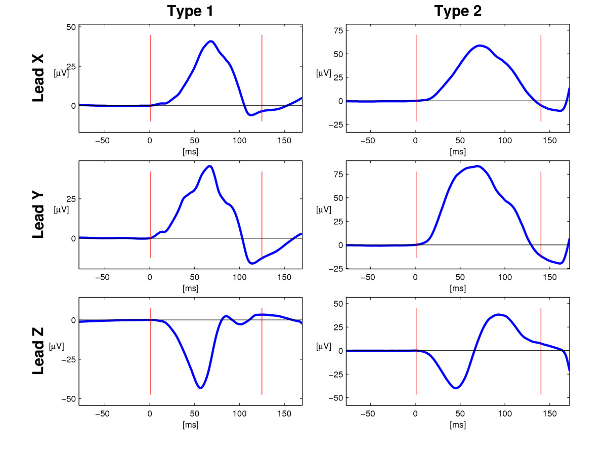 http://static-content.springer.com/image/art%3A10.1186%2F1471-2261-7-22/MediaObjects/12872_2007_Article_162_Fig1_HTML.jpg