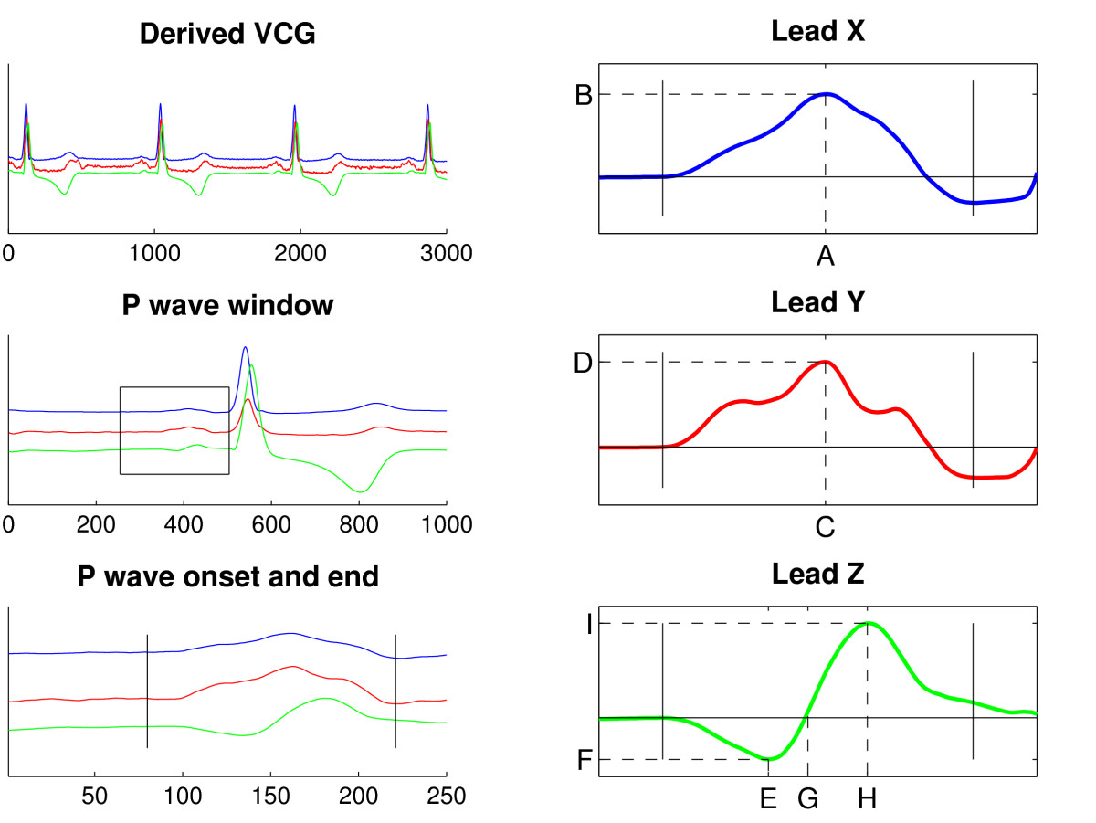 http://static-content.springer.com/image/art%3A10.1186%2F1471-2261-7-22/MediaObjects/12872_2007_Article_162_Fig2_HTML.jpg