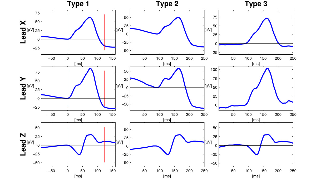http://static-content.springer.com/image/art%3A10.1186%2F1471-2261-7-22/MediaObjects/12872_2007_Article_162_Fig4_HTML.jpg