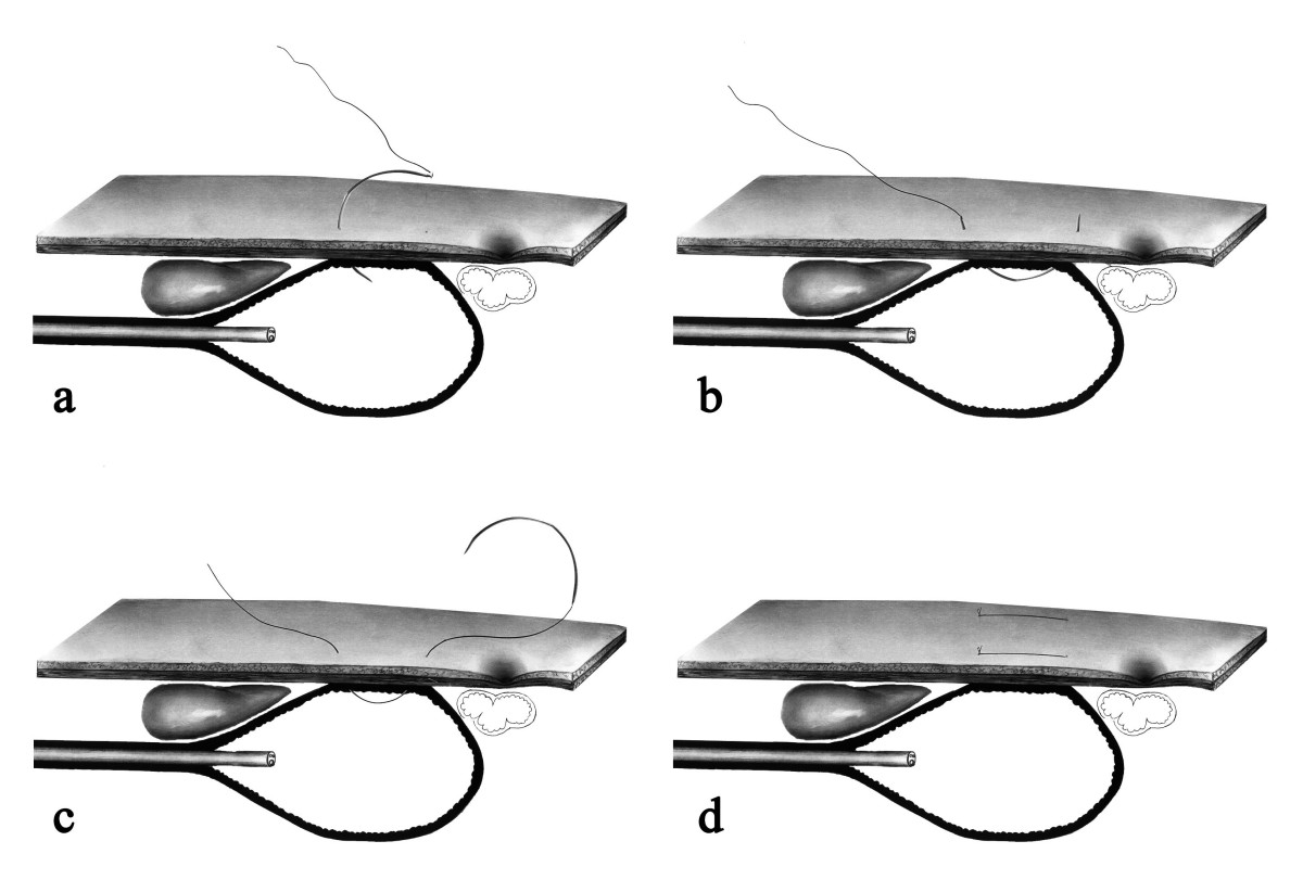 http://static-content.springer.com/image/art%3A10.1186%2F1471-230X-9-48/MediaObjects/12876_2009_Article_340_Fig1_HTML.jpg