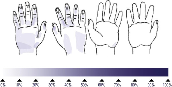http://static-content.springer.com/image/art%3A10.1186%2F1471-2334-13-472/MediaObjects/12879_2013_2676_Fig1_HTML.jpg