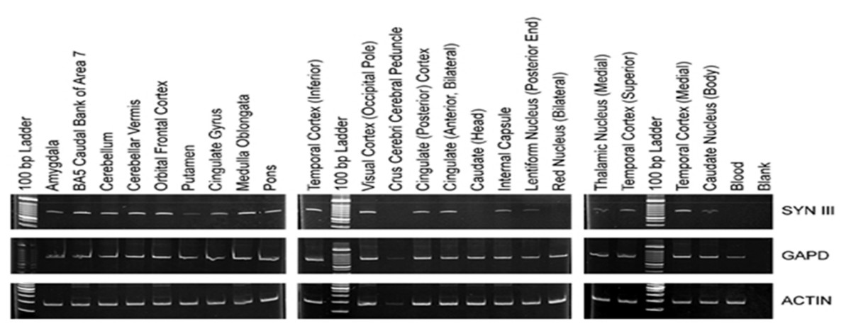 http://static-content.springer.com/image/art%3A10.1186%2F1471-2350-9-115/MediaObjects/12881_2008_Article_409_Fig2_HTML.jpg
