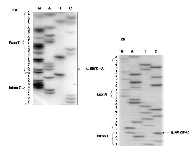 http://static-content.springer.com/image/art%3A10.1186%2F1471-2350-9-54/MediaObjects/12881_2007_Article_348_Fig3_HTML.jpg