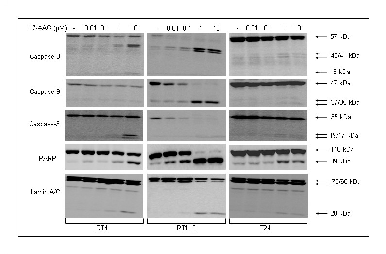 http://static-content.springer.com/image/art%3A10.1186%2F1471-2407-10-481/MediaObjects/12885_2010_Article_2280_Fig5_HTML.jpg