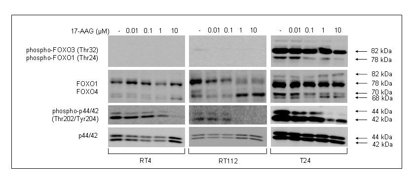 http://static-content.springer.com/image/art%3A10.1186%2F1471-2407-10-481/MediaObjects/12885_2010_Article_2280_Fig9_HTML.jpg