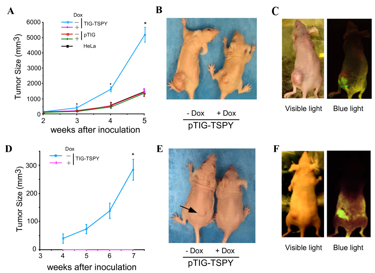 http://static-content.springer.com/image/art%3A10.1186%2F1471-2407-6-154/MediaObjects/12885_2006_Article_506_Fig2_HTML.jpg