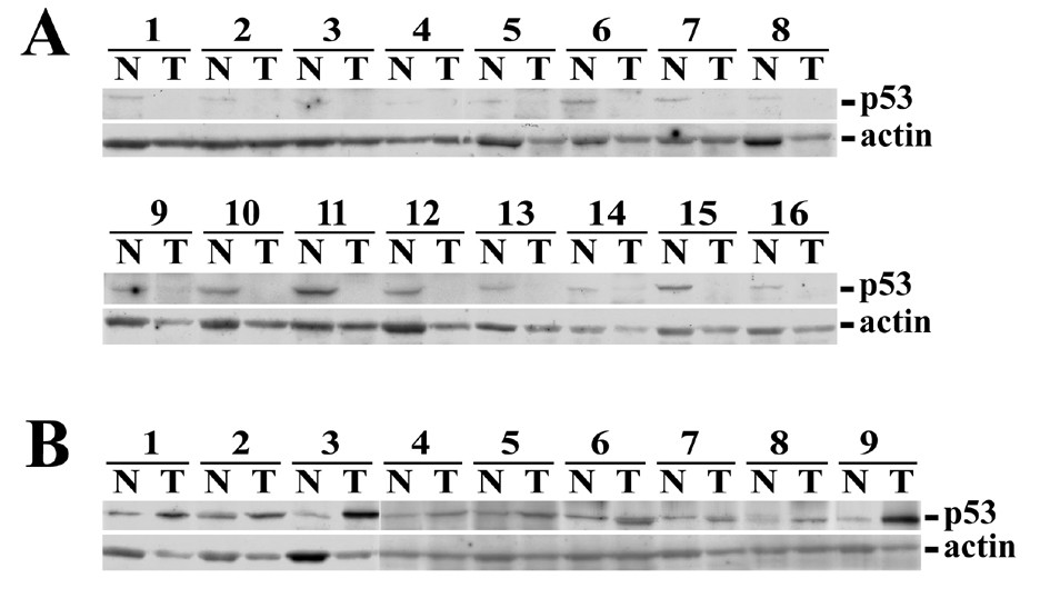 http://static-content.springer.com/image/art%3A10.1186%2F1471-2407-9-324/MediaObjects/12885_2009_Article_1658_Fig4_HTML.jpg