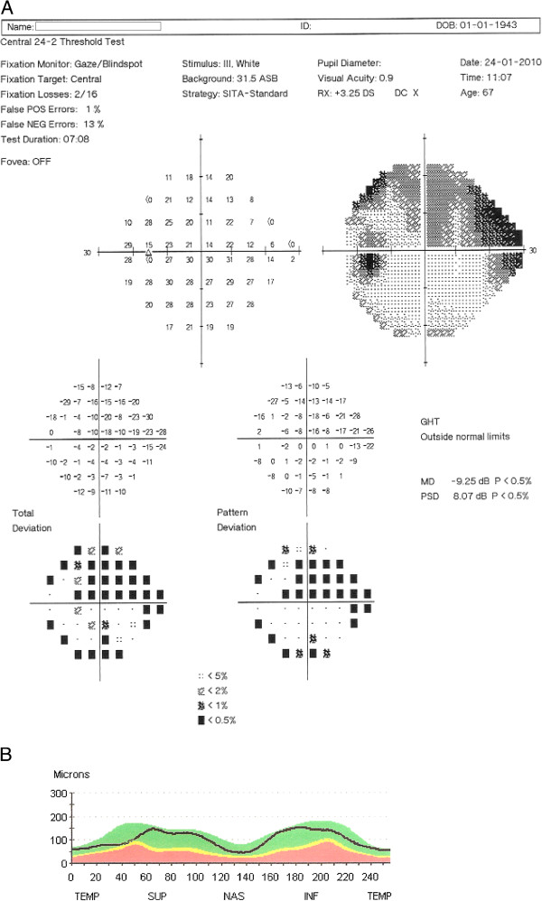 http://static-content.springer.com/image/art%3A10.1186%2F1471-2415-12-54/MediaObjects/12886_2012_281_Fig1_HTML.jpg