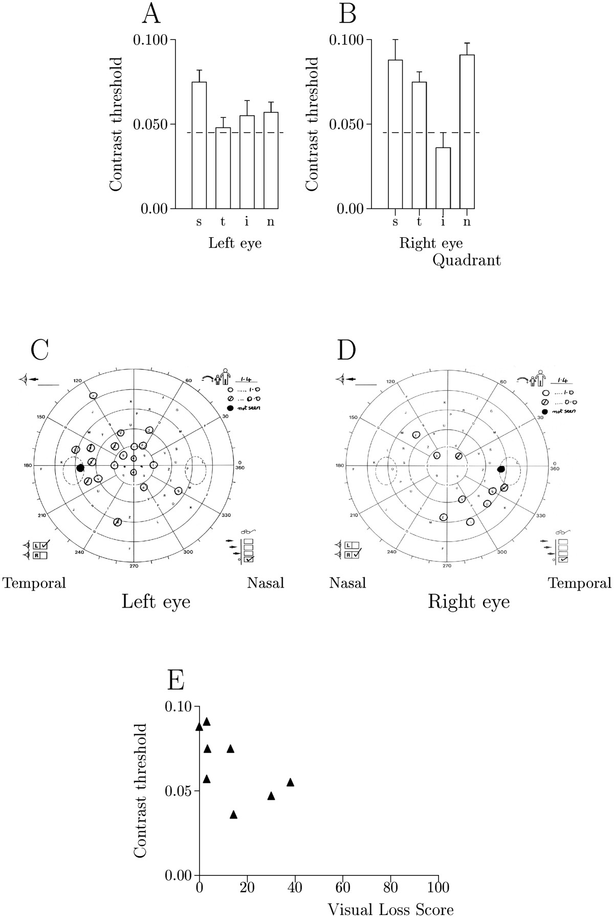 http://static-content.springer.com/image/art%3A10.1186%2F1471-2415-5-22/MediaObjects/12886_2005_Article_55_Fig4_HTML.jpg