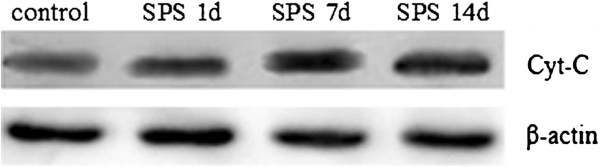 http://static-content.springer.com/image/art%3A10.1186%2F1471-244X-12-211/MediaObjects/12888_2012_1172_Fig3_HTML.jpg