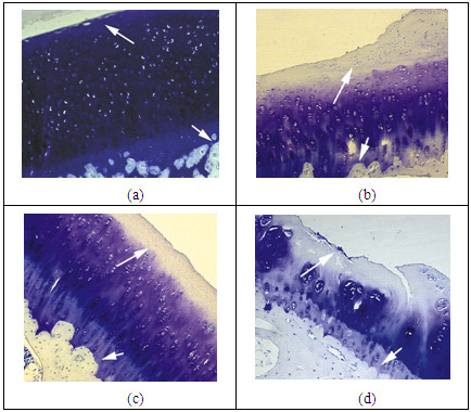 http://static-content.springer.com/image/art%3A10.1186%2F1471-2474-13-34/MediaObjects/12891_2011_1372_Fig3_HTML.jpg