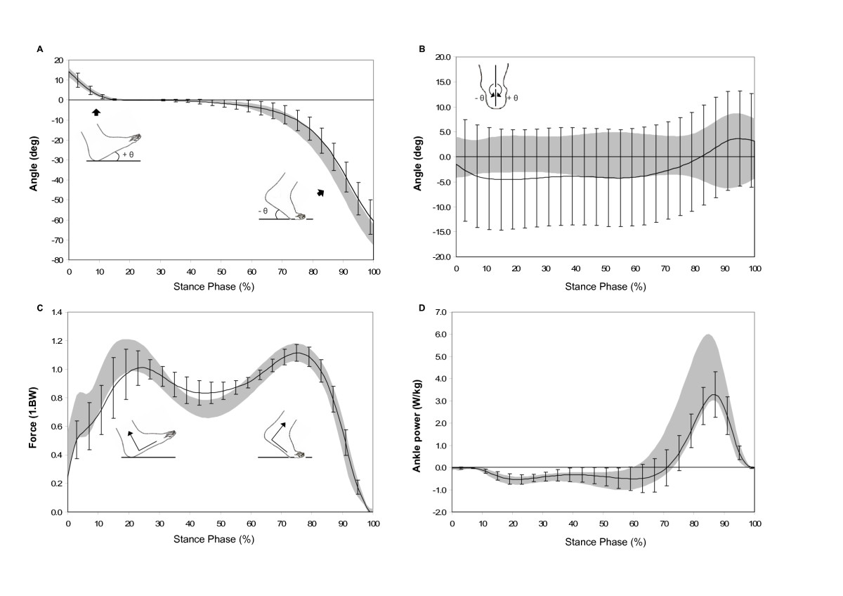 http://static-content.springer.com/image/art%3A10.1186%2F1471-2474-7-102/MediaObjects/12891_2006_Article_276_Fig1_HTML.jpg