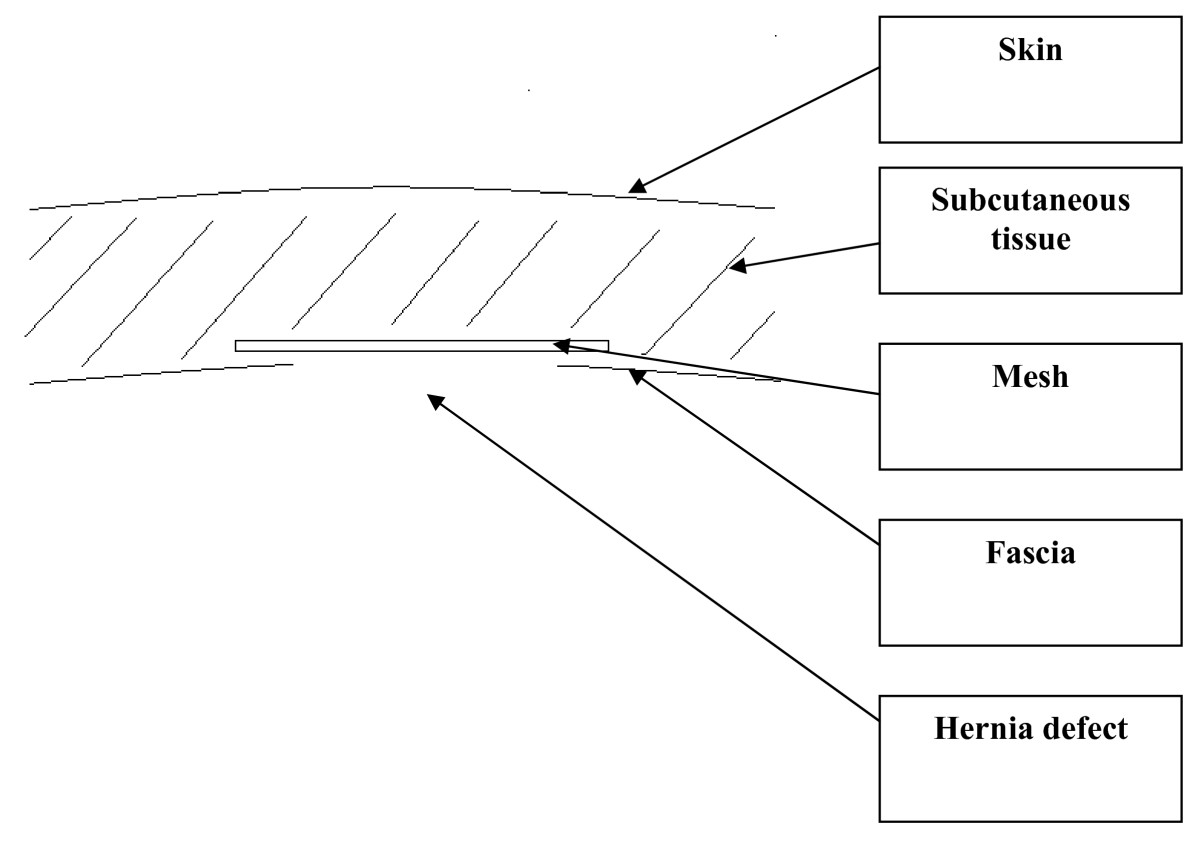 http://static-content.springer.com/image/art%3A10.1186%2F1471-2482-9-6/MediaObjects/12893_2008_Article_133_Fig1_HTML.jpg