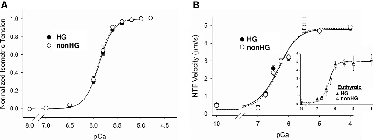 http://static-content.springer.com/image/art%3A10.1186%2F1475-2840-11-135/MediaObjects/12933_2012_Article_569_Fig2_HTML.jpg