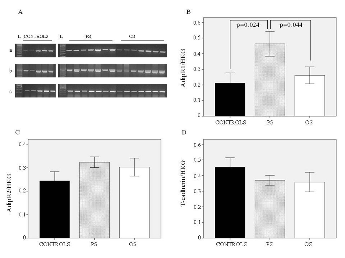 http://static-content.springer.com/image/art%3A10.1186%2F1475-2840-11-143/MediaObjects/12933_2012_Article_571_Fig2_HTML.jpg