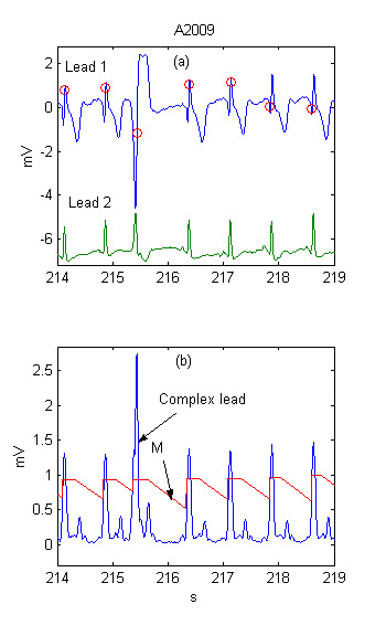 http://static-content.springer.com/image/art%3A10.1186%2F1475-925X-3-28/MediaObjects/12938_2004_Article_55_Fig1_HTML.jpg