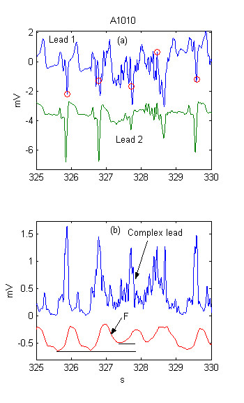 http://static-content.springer.com/image/art%3A10.1186%2F1475-925X-3-28/MediaObjects/12938_2004_Article_55_Fig2_HTML.jpg