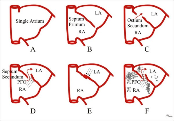 http://static-content.springer.com/image/art%3A10.1186%2F1476-7120-10-16/MediaObjects/12947_2012_417_Fig6_HTML.jpg