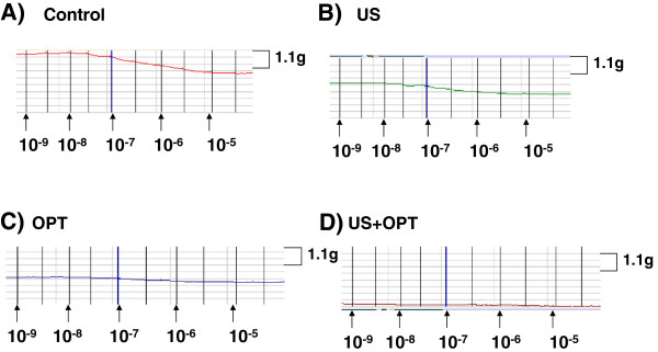 http://static-content.springer.com/image/art%3A10.1186%2F1476-7120-10-29/MediaObjects/12947_2011_433_Fig4_HTML.jpg