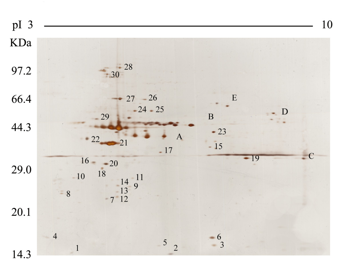 http://static-content.springer.com/image/art%3A10.1186%2F1477-5956-10-32/MediaObjects/12953_2011_Article_365_Fig2_HTML.jpg