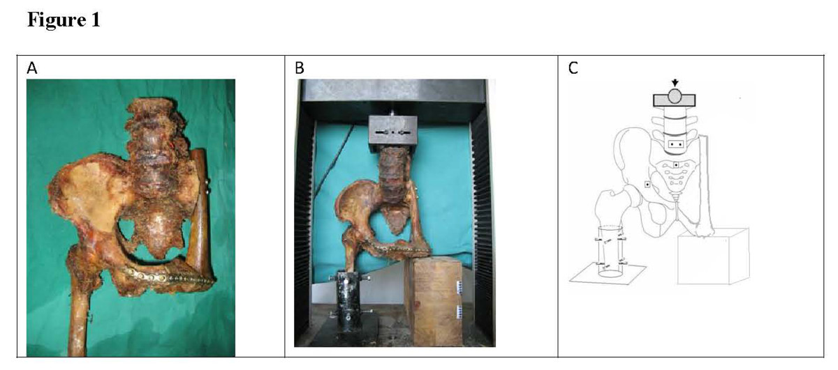 http://static-content.springer.com/image/art%3A10.1186%2F1477-7819-12-1/MediaObjects/12957_2012_Article_1509_Fig1_HTML.jpg