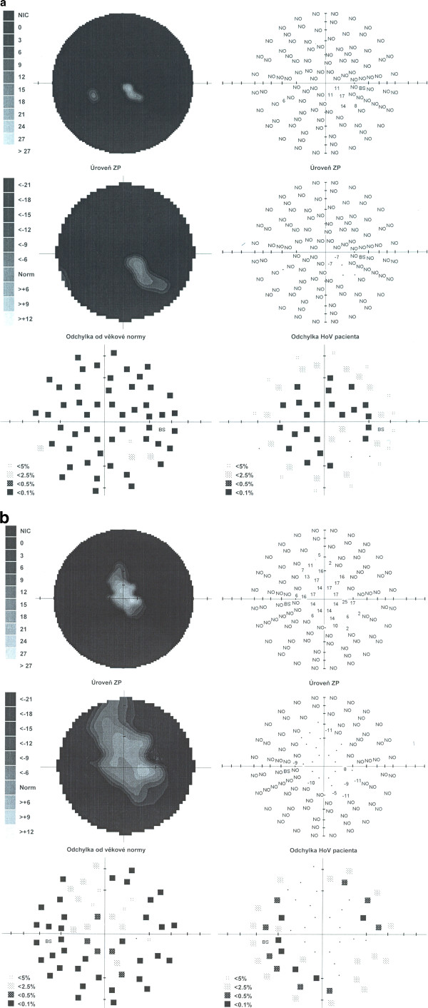 http://static-content.springer.com/image/art%3A10.1186%2F1743-422X-10-18/MediaObjects/12985_2012_1987_Fig4_HTML.jpg