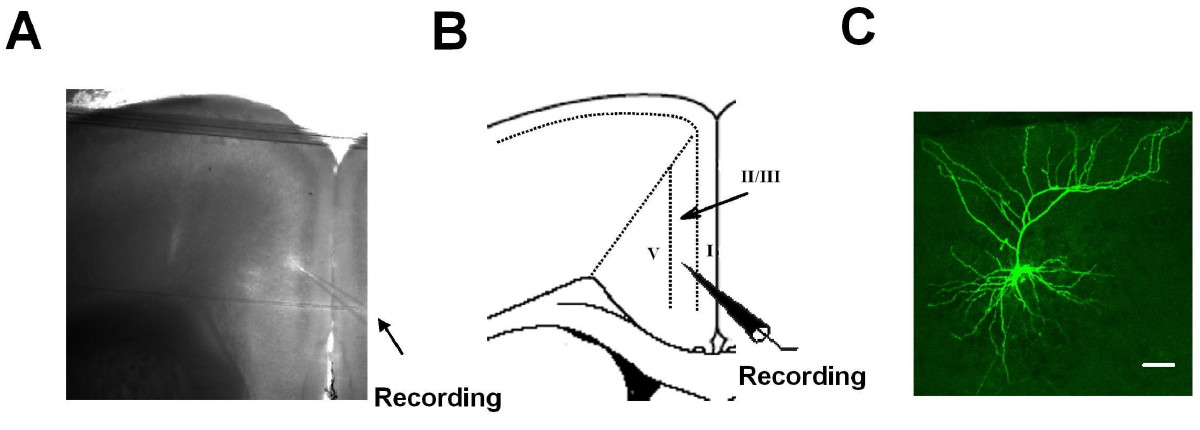 http://static-content.springer.com/image/art%3A10.1186%2F1744-8069-5-73/MediaObjects/12990_2009_Article_256_Fig1_HTML.jpg