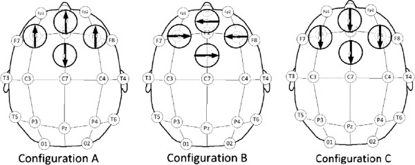 http://static-content.springer.com/image/art%3A10.1186%2F1744-8069-9-33/MediaObjects/12990_2013_Article_587_Fig5_HTML.jpg