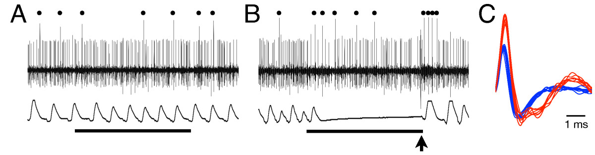 http://static-content.springer.com/image/art%3A10.1186%2F1744-9081-8-52/MediaObjects/12993_2012_Article_405_Fig2_HTML.jpg