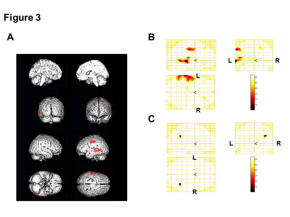 http://static-content.springer.com/image/art%3A10.1186%2F1744-9081-9-2/MediaObjects/12993_2012_Article_429_Fig3_HTML.jpg