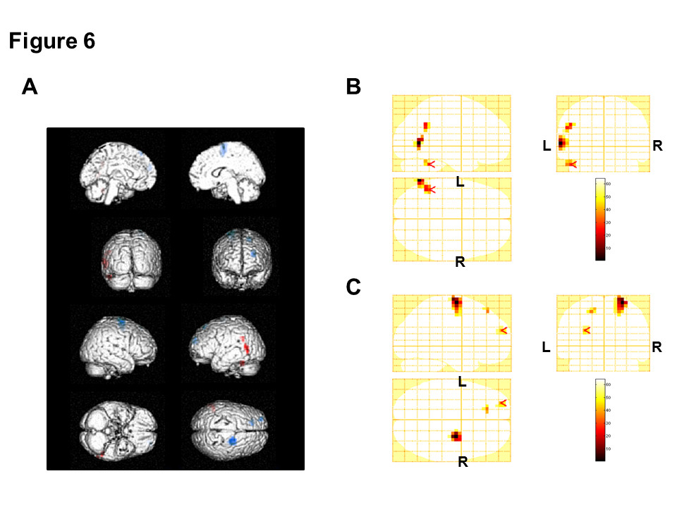http://static-content.springer.com/image/art%3A10.1186%2F1744-9081-9-2/MediaObjects/12993_2012_Article_429_Fig6_HTML.jpg