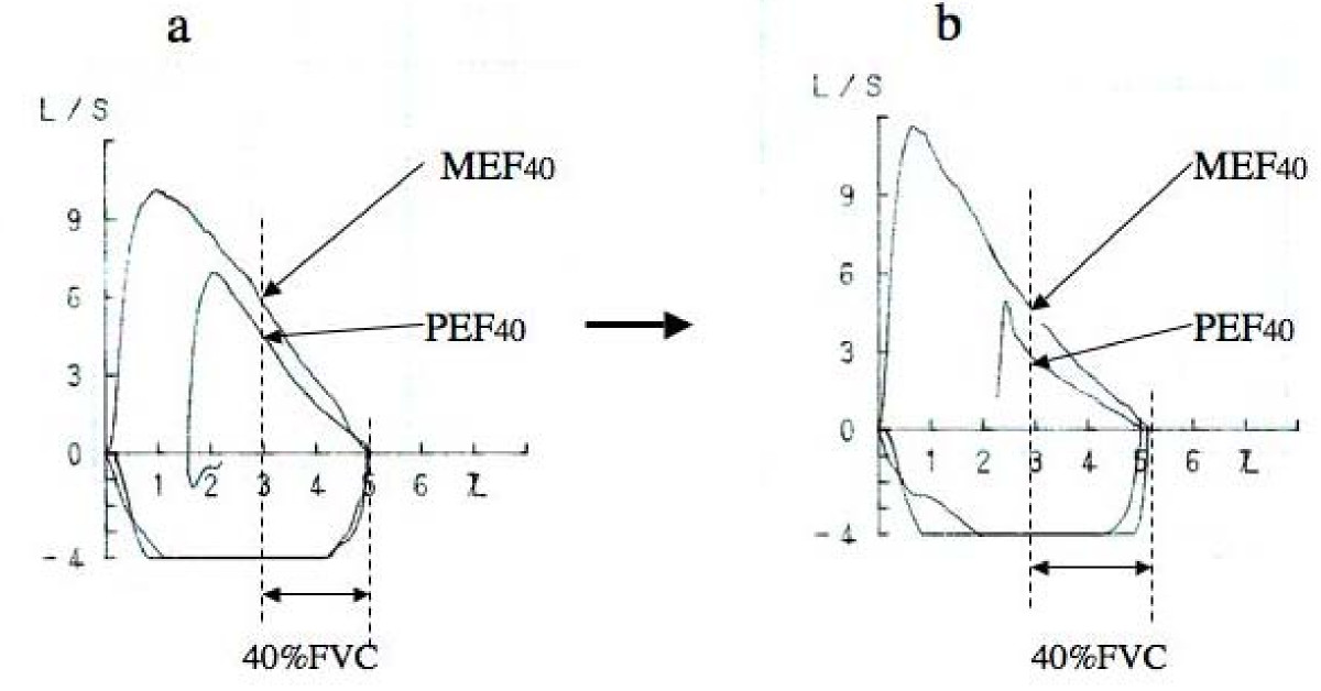 http://static-content.springer.com/image/art%3A10.1186%2F1745-9974-5-9/MediaObjects/12997_2009_Article_52_Fig2_HTML.jpg