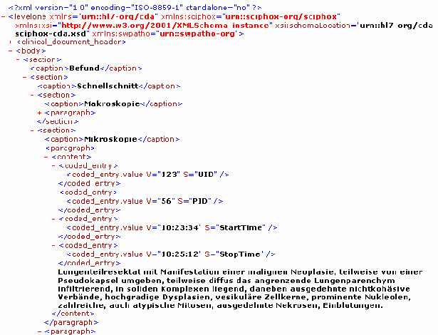 http://static-content.springer.com/image/art%3A10.1186%2F1746-1596-1-40/MediaObjects/13000_2006_Article_40_Fig3_HTML.jpg